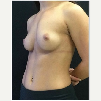 25-34 year old woman treated with Breast Augmentation before 3103435
