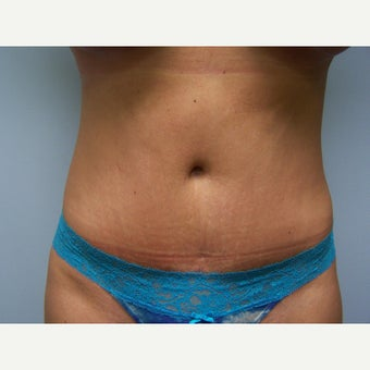 25-34 year old woman treated with Tummy Tuck after 1568155