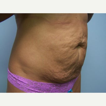 25-34 year old woman treated with Tummy Tuck 1568155