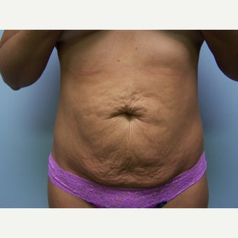 25-34 year old woman treated with Tummy Tuck before 1568155