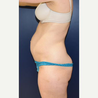 35-44 year old woman treated with Tummy Tuck before 3734119