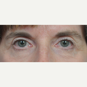 55-64 year old woman treated with Eyelid Surgery after 3697004