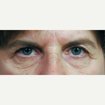 55-64 year old woman treated with Eyelid Surgery before 3697004