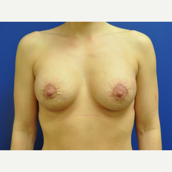 25-34 year old woman treated with Breast Lift with Implants after 3299845