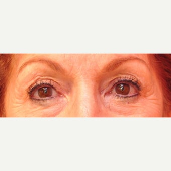 65-74 year old woman treated with Eyelid Surgery