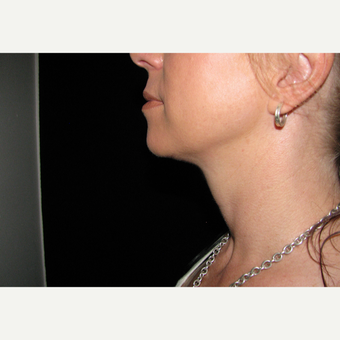 1 Kybella treatment followed by Forma RF after 3076520