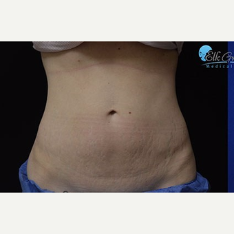 25-34 year old woman treated with Stretch Marks Treatment