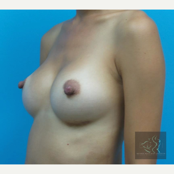 25-34 year old woman treated with Breast Augmentation after 3095154