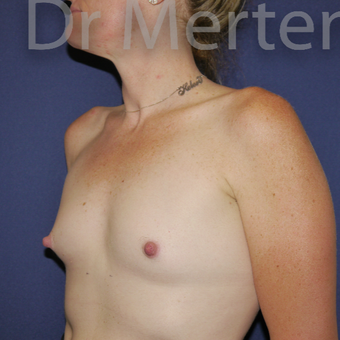 35-44 year old woman treated with Breast Augmentation before 3551960