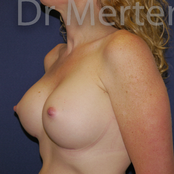 35-44 year old woman treated with Breast Augmentation after 3551960