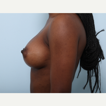 Breast Augmentation after 3425265
