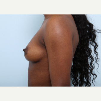 Breast Augmentation before 3425265