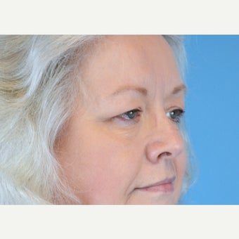 55-64 year old woman treated with Eyelid Surgery before 2224566