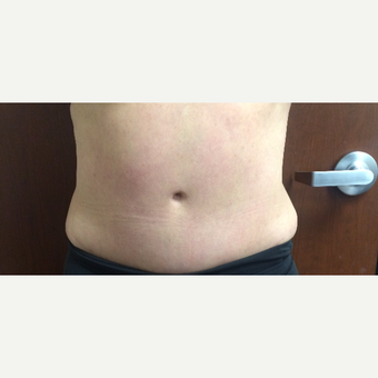 55-64 year old woman treated with SculpSure before 3246680