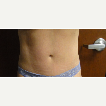 55-64 year old woman treated with SculpSure after 3246680
