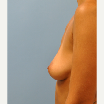 27 year old woman treated with Breast Implants, Asymmetry and silicone implants before 3776168