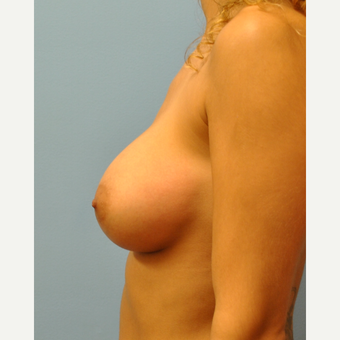 27 year old woman treated with Breast Implants, Asymmetry and silicone implants after 3776168