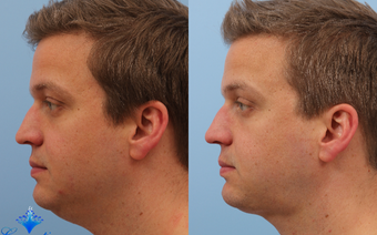 35-44 year old man treated with Kybella before 3808961