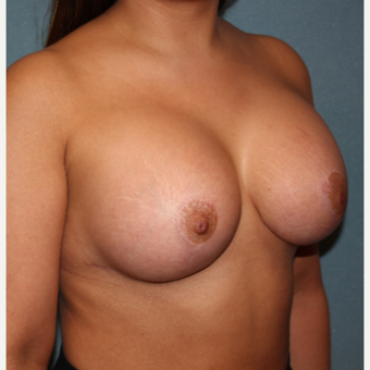 25-34 year old woman treated with Breast Augmentation after 3259754