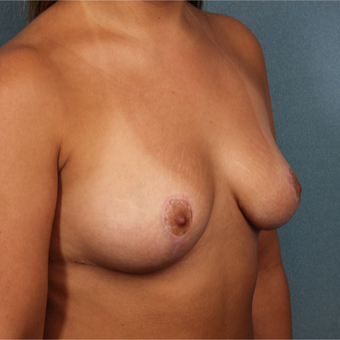 25-34 year old woman treated with Breast Augmentation before 3259754