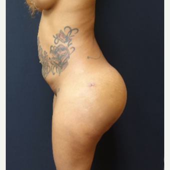 25-34 year old woman treated with 712cc Implants and Fat Transfer For Her Butt Augmentation after 3129109