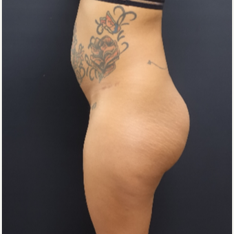 25-34 year old woman treated with 712cc Implants and Fat Transfer For Her Butt Augmentation before 3129109