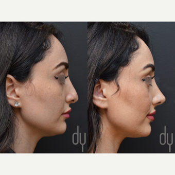 Revision Rhinoplasty before 3116252