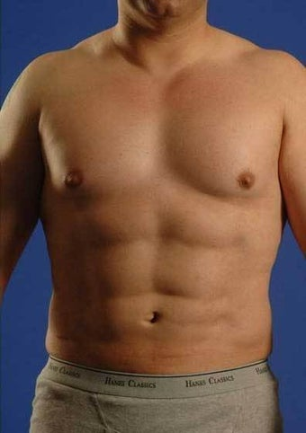 Vaser Hi-def Liposuction Patient after 1364769