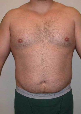 Vaser Hi-def Liposuction Patient before 1364769