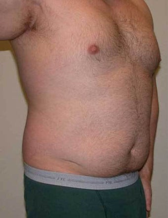 Vaser Hi-def Liposuction Patient 1364769