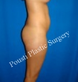 18-24 year old woman treated with Tummy Tuck before 3727472