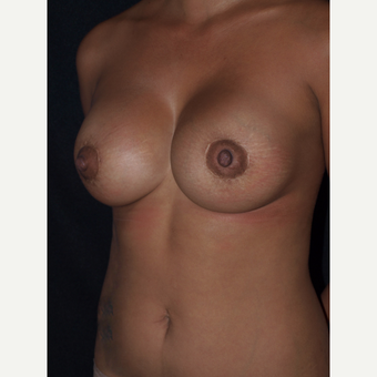 30 year old woman treated with Breast Lift with Implants after 3846543