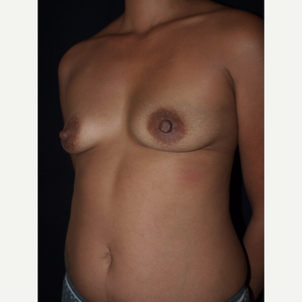 30 year old woman treated with Breast Lift with Implants before 3846543