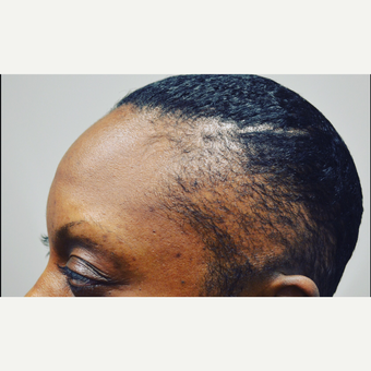 35-44 year old woman treated with FUE Hair Transplant before 3414982
