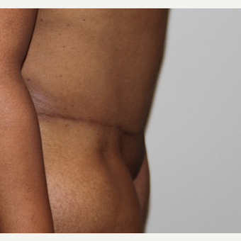 35-44 year old woman treated with Tummy Tuck after 3493567