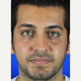 Male Rhinoplasty before 3684488