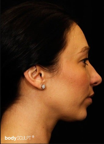 25-34 year old woman treated with Kybella after 3101522