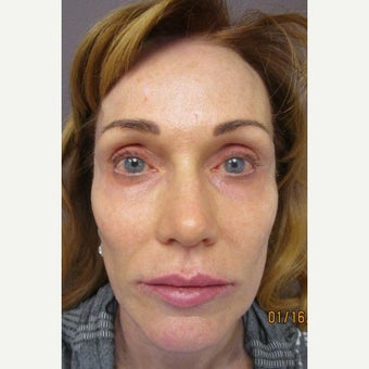 Sculptra and Botox, fixing prior placement of Vouma from outside before 2145615