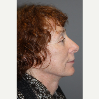 55-64 year old woman treated with Neck Lift after 3147967