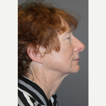 55-64 year old woman treated with Neck Lift before 3147967