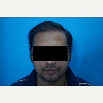 25-34 year old man treated with FUE Hair Transplant after 3745915