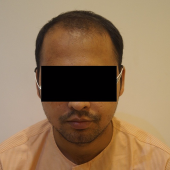 25-34 year old man treated with FUE Hair Transplant before 3745915