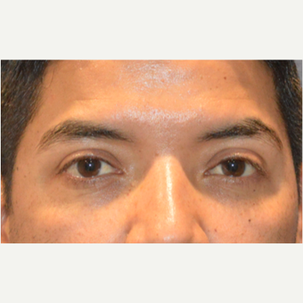 Lower blepharoplasty after 3248022