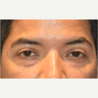 Lower blepharoplasty before 3248022