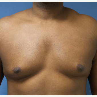 35-44 year old man treated with Male Breast Reduction before 3678051