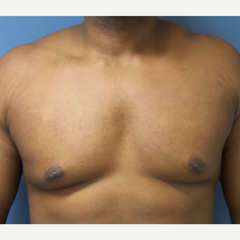 35-44 year old man treated with Male Breast Reduction after 3678051