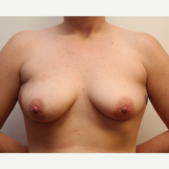 25-34 year old woman treated with Breast Lift with Implants before 3300208