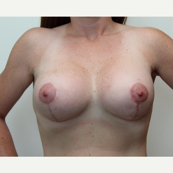 25-34 year old woman treated with Breast Lift with Implants after 3300208