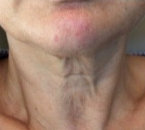 55-64 year old woman treated with Kybella before 3174611