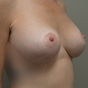 35-44 year old woman treated with Inspira Breast Implants after 3724645